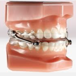 Oral appliance therapy (OAT)